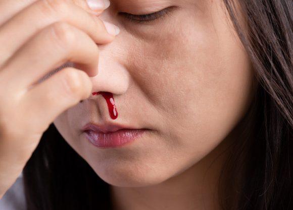 Jakie są przyczyny krwawienia z nosa i jak sobie z tym radzić?