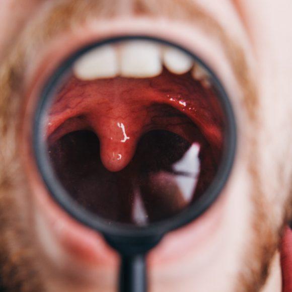Powikłania po zapaleniu migdałków – uważaj na nie!